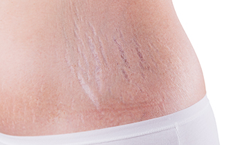 Beauty salon in Bolton, stretch mark reduction